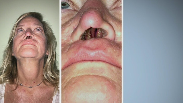 12. Breast Lumps and Empty Noses