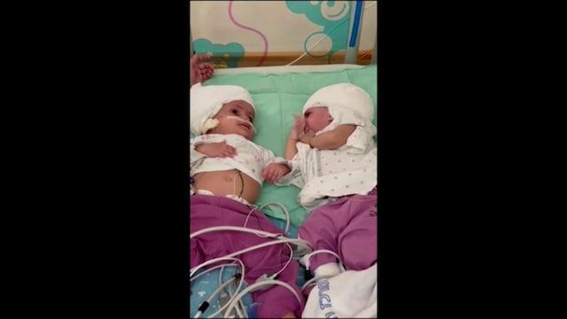 Lifestyle, Päästään kiinni olevat kaksoset erotettiin 12 tunnin leikkauksessa